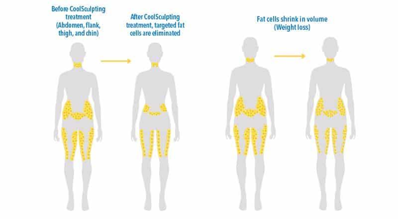La lipoescultura CoolSculpting consigue disminuir el número total de células