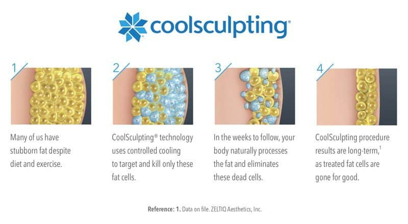 La plataforma CoolSculpting aplica un enfriamiento controlado, suave y eficaz