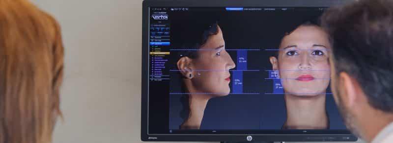 vectra-h1-simulacion-rinoplastia