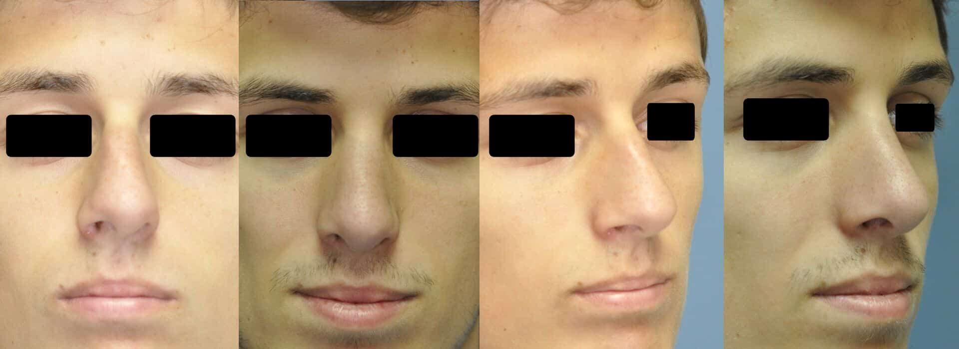 Antes y después de la rinoplastia en un hombre