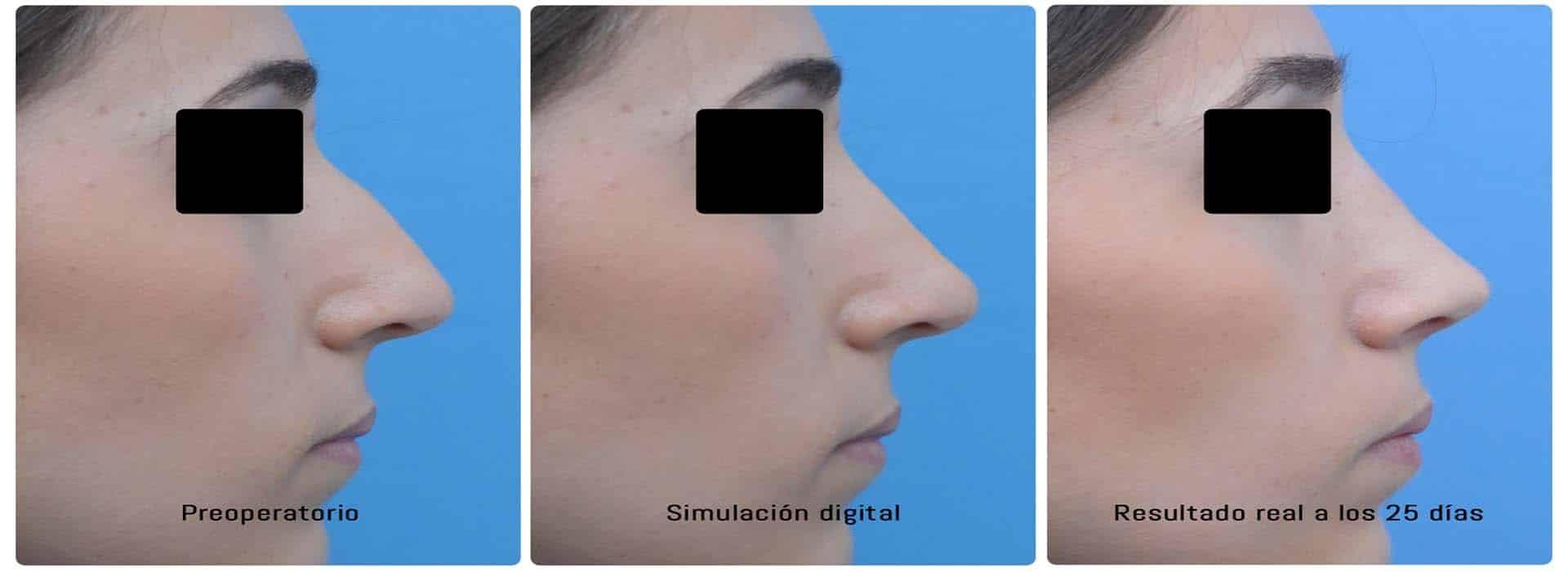Antes y después de la rinoplastia en una mujer