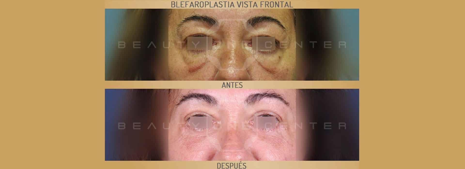 Blefaroplastia: Antes y después de una operación real