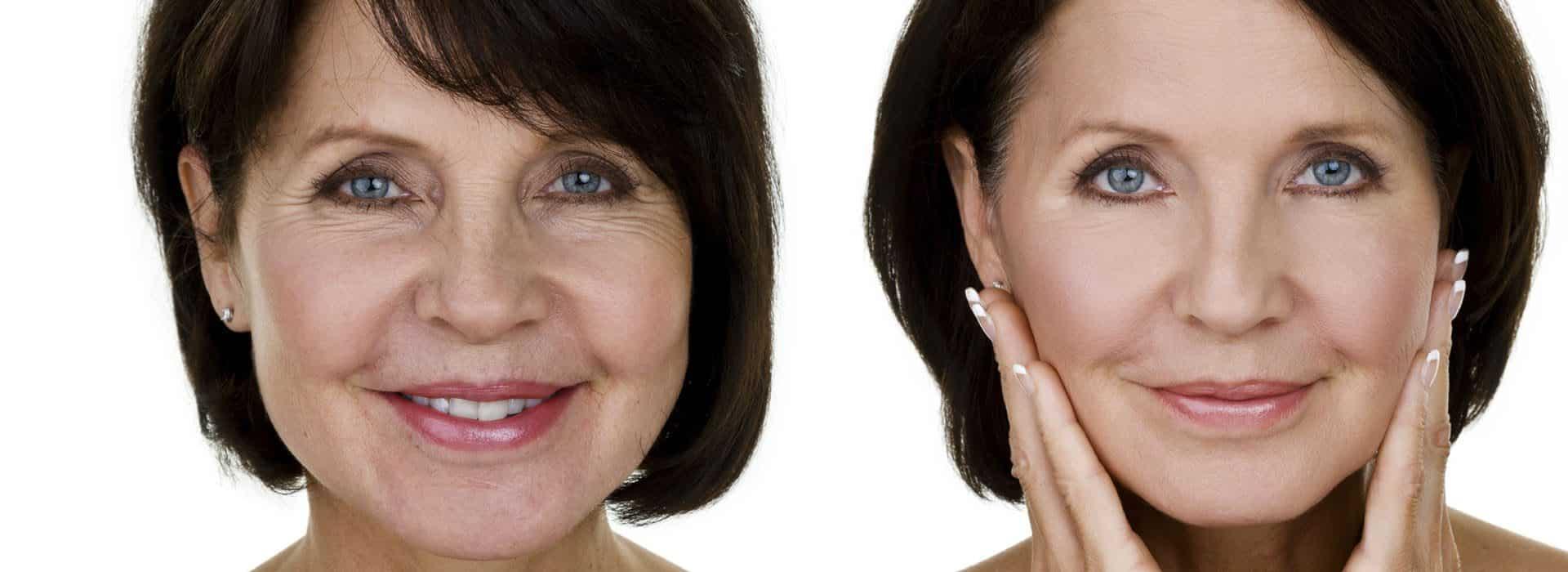 Cirugía antiaging o lifting cervicofacial ¿en qué consiste?