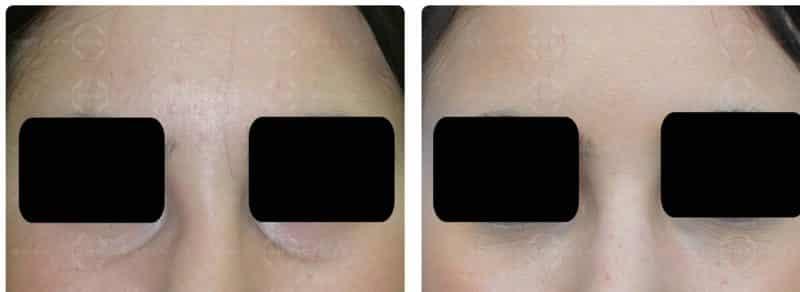 Operación bolsas de los ojos