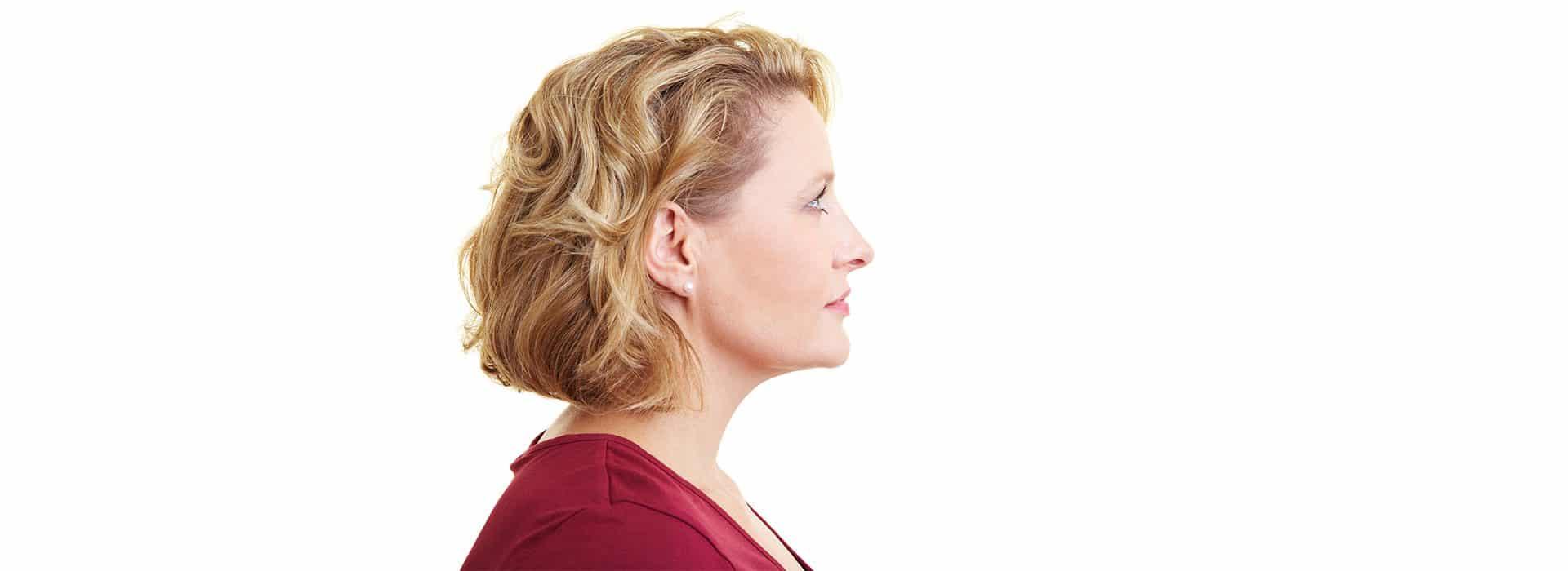 Operación de nariz secundaria, mejora tu nariz en una segunda operación