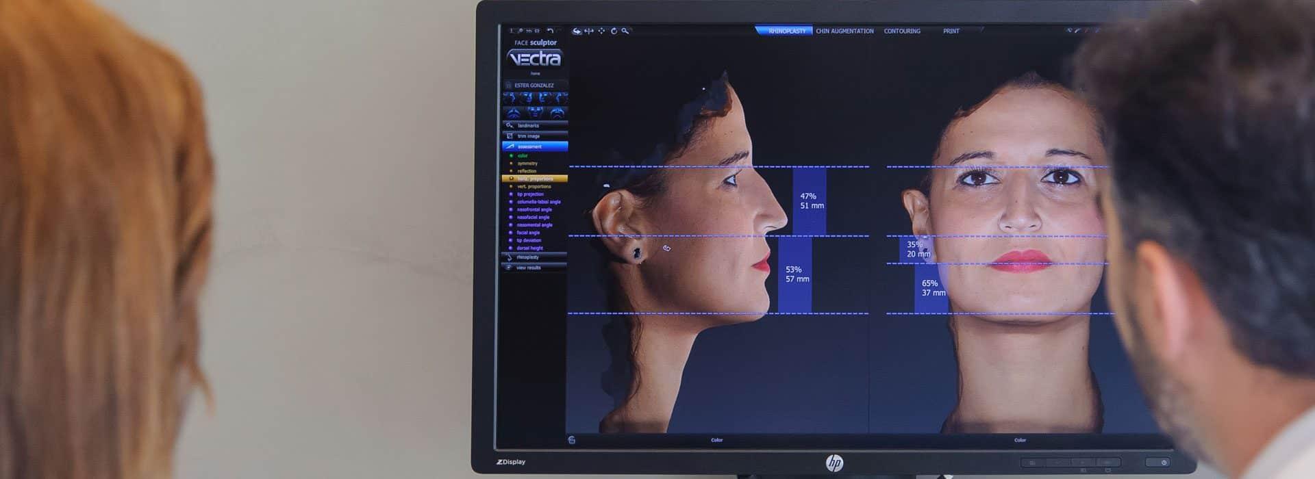 Simulación en 3D de una Rinoplastia