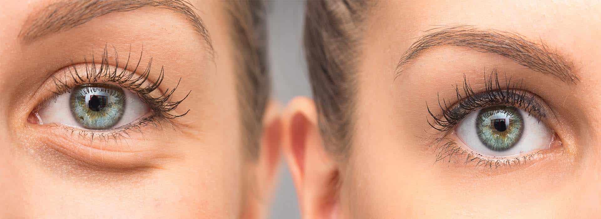Blefaroplastia inferior: ¿Qué es? Tratamiento y resultados