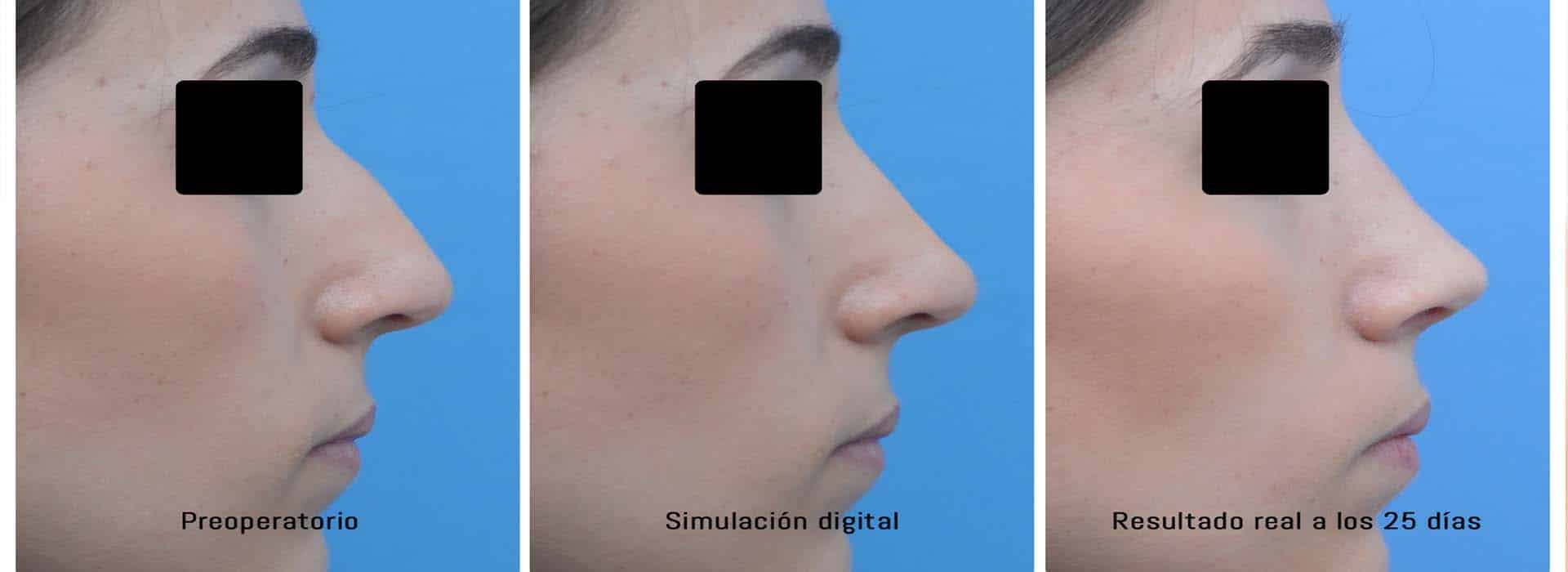 Limado del caballete en nariz: ¿en qué consiste?