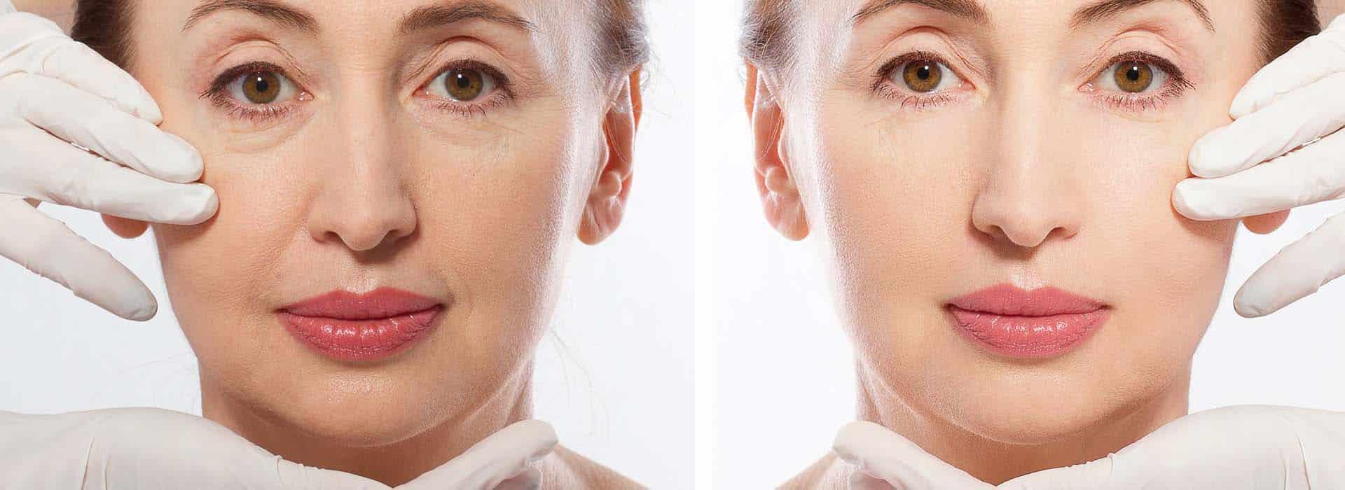 Huesos de la nariz: anatomía y estructura