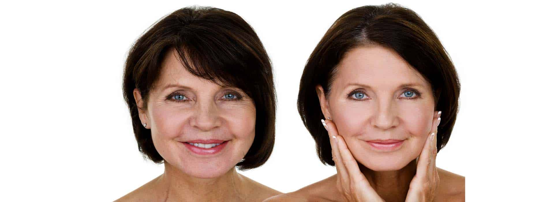 Antes y después de la lipoescultura facial