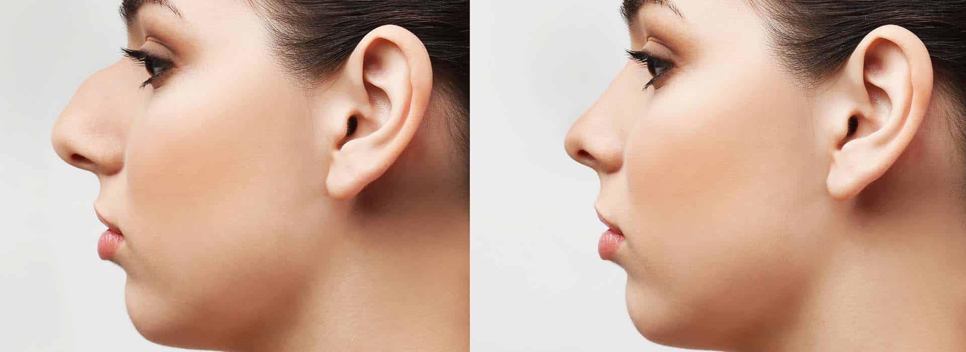 Rinoplastia de nariz ancha