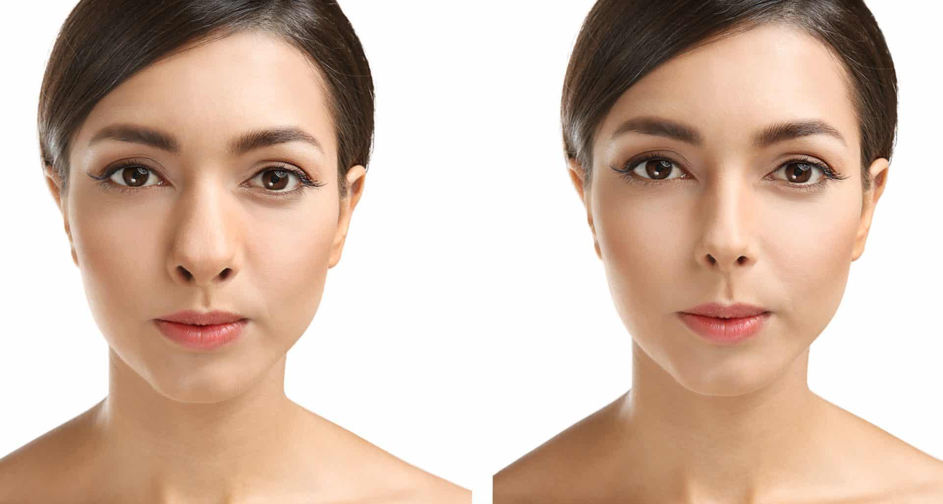 Rinoplastia de punta de nariz bulbosa: ¿Qué es y en qué consiste? Antes y después