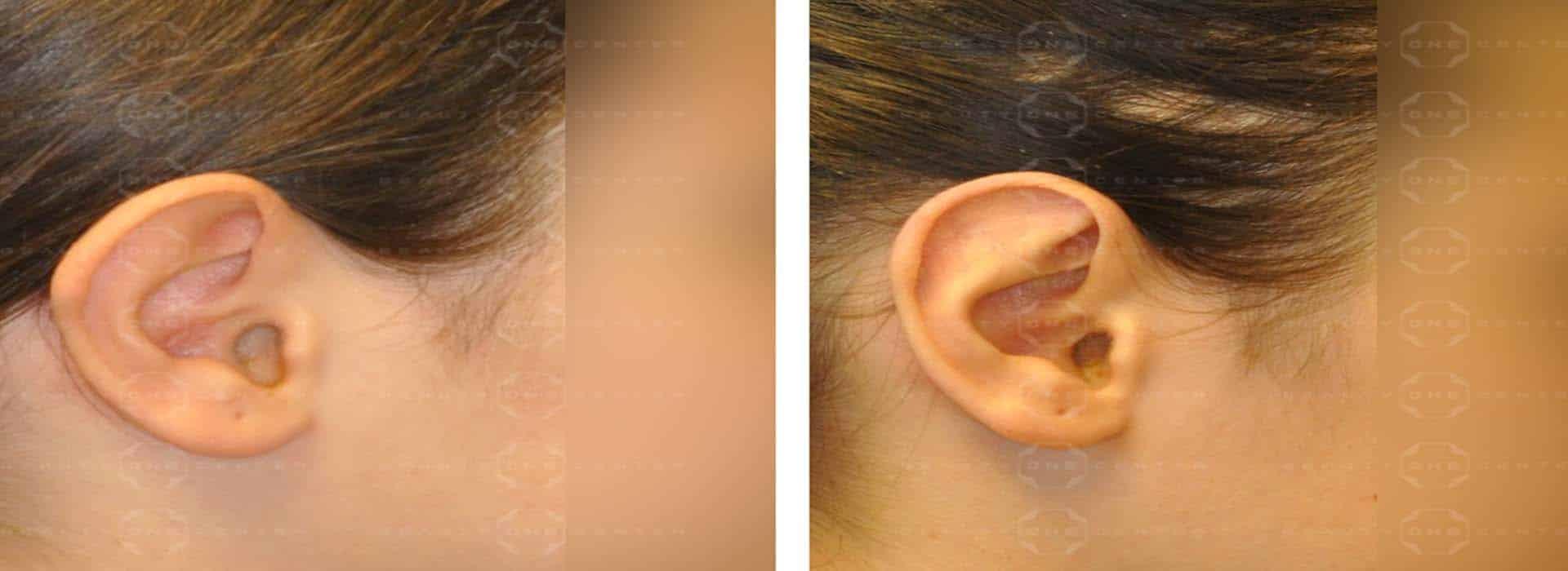 Postoperatorio de la otoplastia u operación de orejas