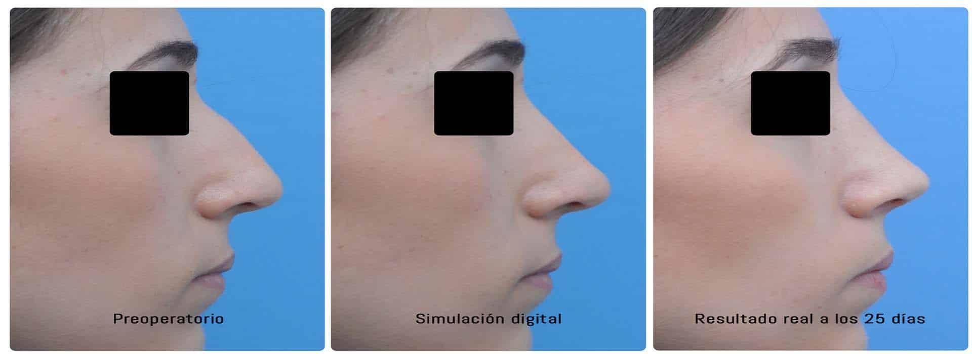 Rinoplastia: Todo lo que debes saber antes de operarte la nariz