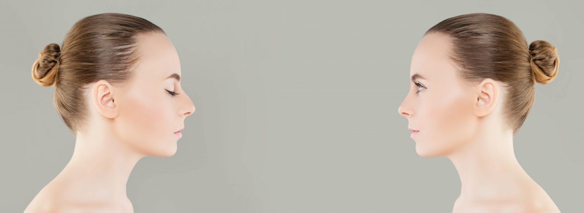 Razones para operarse la nariz: Salud y estética